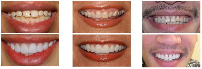 Carillas Dentales Resultados antes y despues