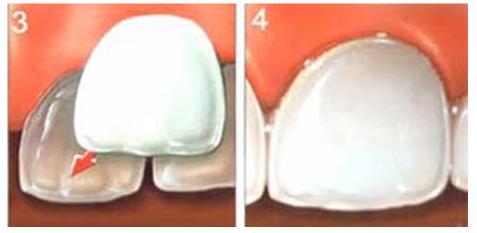 Colocacion Carillas de Porcelana 2