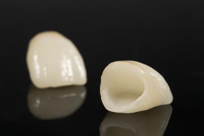 coronas dentales 1