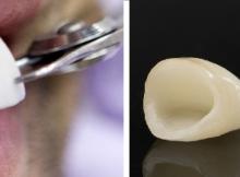 Diferencia entre Coronas y Carillas Dentales