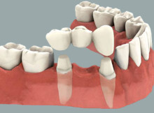 Puente Dental