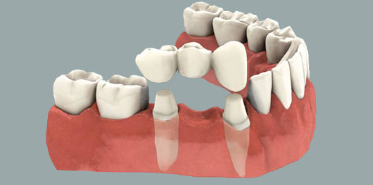 Resultado de imagen de colocacion de corona dental