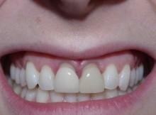 Recesión Gingival Carillas Dentales