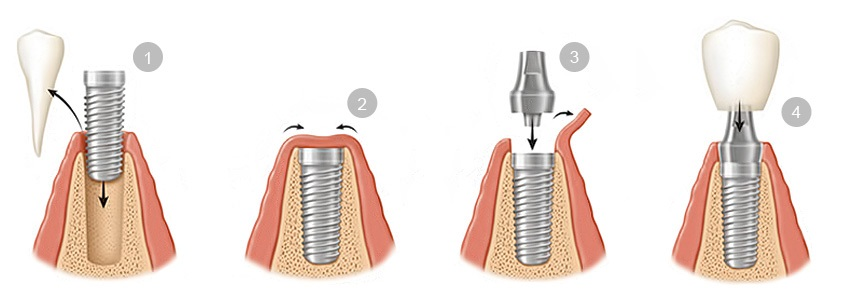 colocacion implantes dentales