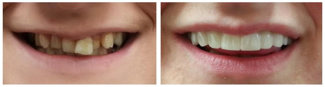 tratamientos dentales antes y despues