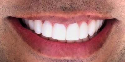 Dientes perfectos en un hombre. Hombre adulto masculino con dentadura perfecta.
