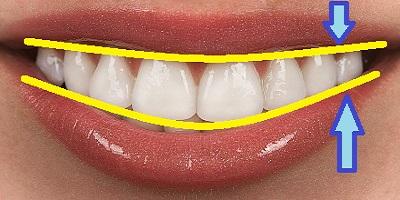 como son los dientes perfectos. imagen de como debe ser una dentadura perfecta
