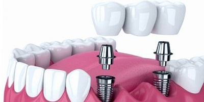 puente dental mas implantes y coronas dentales
