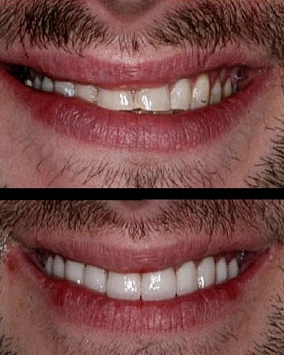 carillas de porcelana fotos antes y despues hombre 2