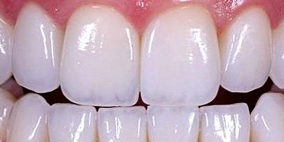 coronas dentales de disilicato de litio emax