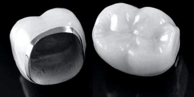coronas dentales de metal-porcelana