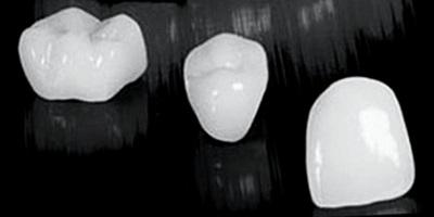 coronas dentales de zirconio