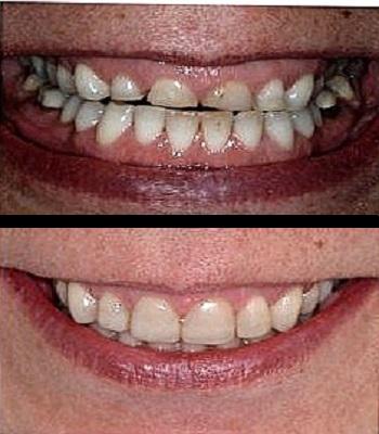 Uso de carillas dentales en dientes desgastados antes y después