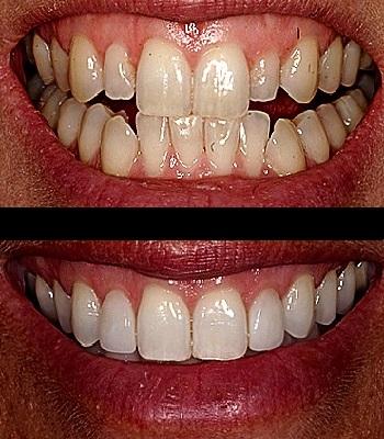 Uso de carillas dentales en dientes pequeños antes y después