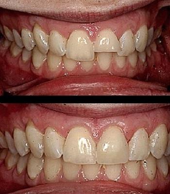 Uso de carillas dentales en dientes rotos y partidos antes y después