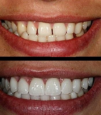 Uso de carillas dentales en dientes separados con diastemas antes y después