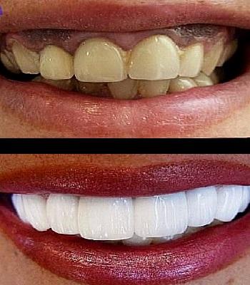 Uso de carillas dentales para blanquear dientes antes y después
