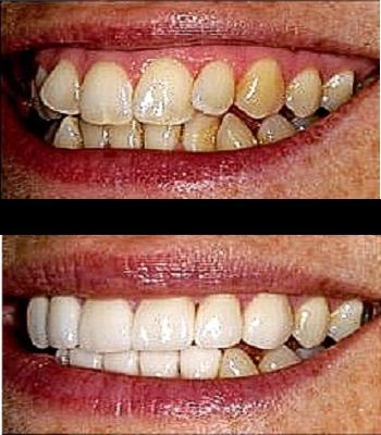 Uso de carillas dentales para dientes torcidos antes y después