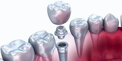funda dental mas implante