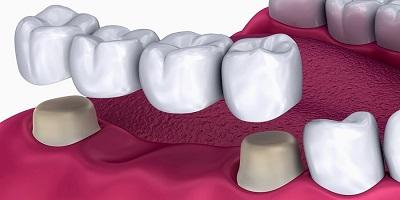 fundas dentales en puente dental